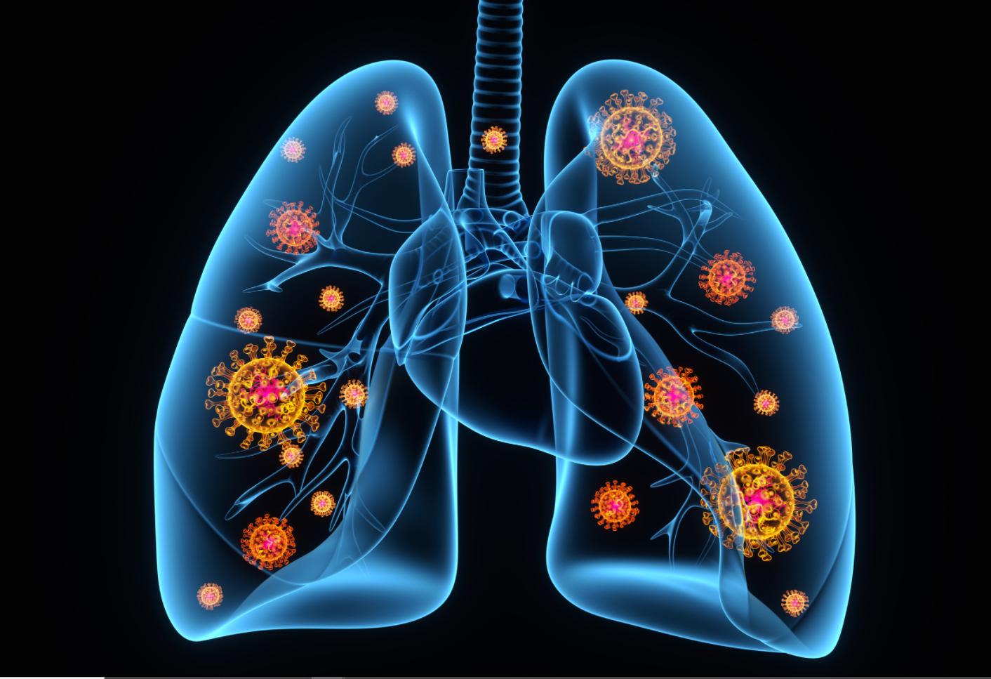 न सास फुल्यो, न कोरोनाको कुनै लक्षण, तर पनि २४ घण्टामा अक्सिजन लेभल ५० सम्म पुग्यो, कतै यो 'ह्याप्पी हाइपोक्सिया' त होइन ?